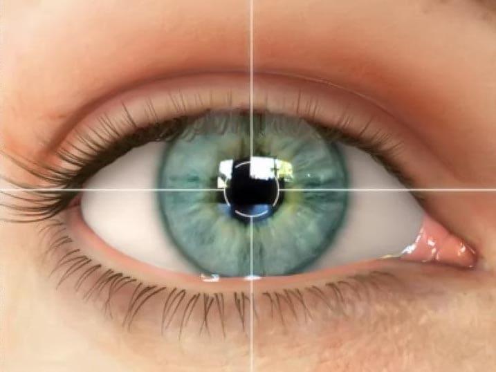 astigmatizm3.jpg